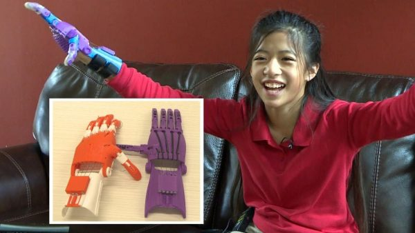 Kid gets 3D hand through kindness